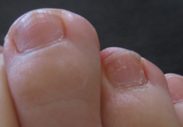 This is a picture of my toes with my onychomycosis. After fixing my low temperature, all of my toes are clear except one shown here, just visible at the top of the right-hand nail. Here it is beginning to grow out having introduced vitamin C.