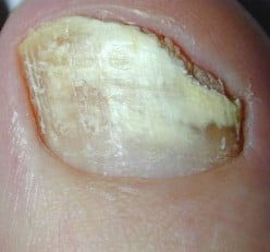 How I Cured My Fungal Toes or Onychomycosis