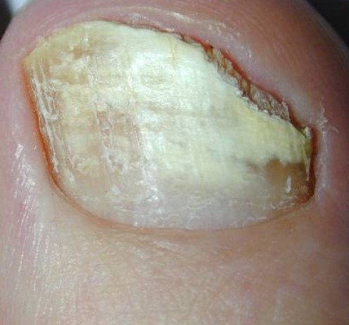 How I Cured My Fungal Toes, or Onychomycosis