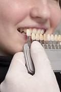 Dentists Compare Whiteness