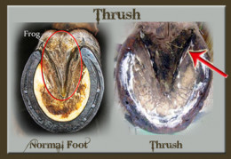 Thrush Candida Albicans Affects Women Men Babies And