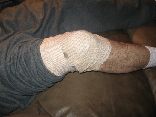 The knee is a common site for pain and swelling.