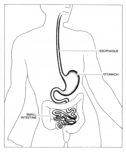 can you still have pain after gallbladder removal