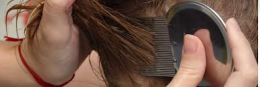 Comb, comb, comb! The key to removing lice and eggs.