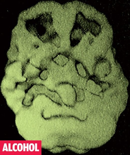 The two craters at the top of this scanned image show areas of the brain where the blood vessels have shut down or closed up, resulting in dead spots where cells have died off, particularly in the prefrontal cortex, due to alcohol abuse.