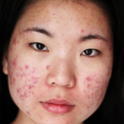 Remedy Me: Home Remedies to Get Rid of Acne