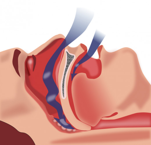 Obstruction of Airway Restricting Breathing