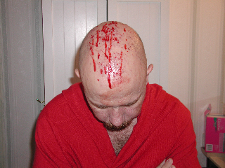 Blood coming from my scalp caused by vomiting which was caused by the chemo therapy I underwent.