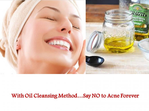 Get rid of Acne with OCM