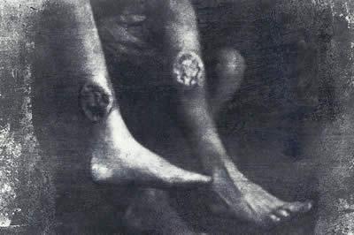 Skin Ulcers - some undergone leg amputations