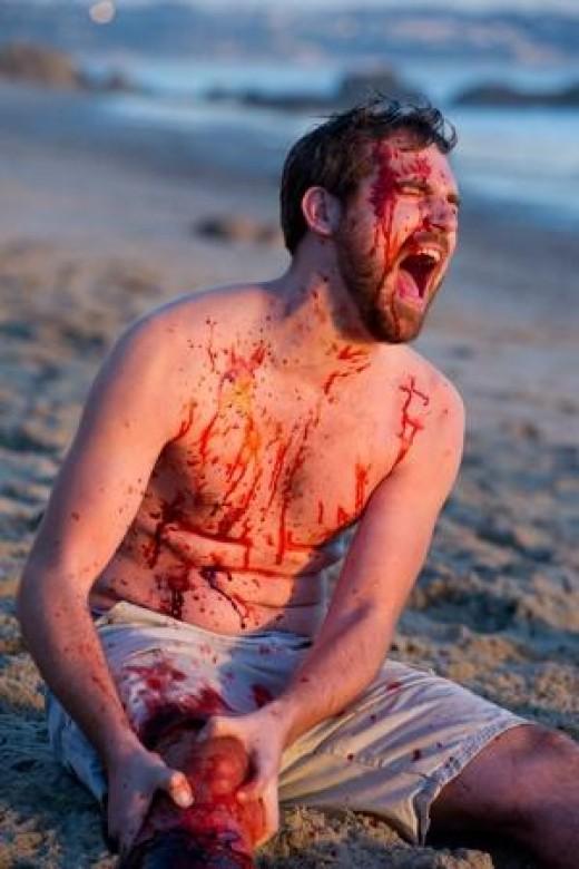 Victim of the sharknado! (Ryan Budds)