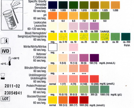 "Urinalysis chart. Normally performed by ""dipstick"" method. Values are checked at various timed invervals"