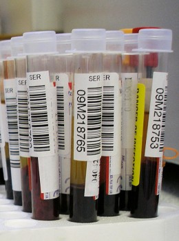 There are hundreds of different blood tests carried out - some for general tests others are more specialised.