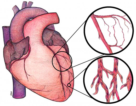 If allowed to progress unchecked, cardiac failure is the most frequent complication occurring in almost all the cardiac diseases. Cardiac failure may be the result of inability of the heart to pump out a large volume of incoming blood