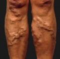 Stop Varicose Veins How to Get Rid of Varicose Veins