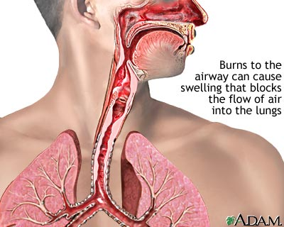 Smoke and heat inhalation