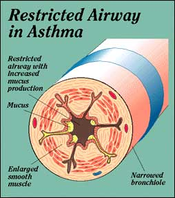 Asthma airway Constricted