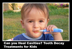 Tooth Decay Treatment for Kids: Can You Heal Cavities?