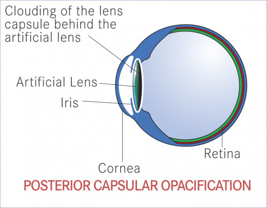 Thesis on posterior capsular opacification