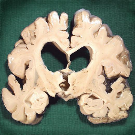 Alzheimer's Disease from AJ Cann flickr.com