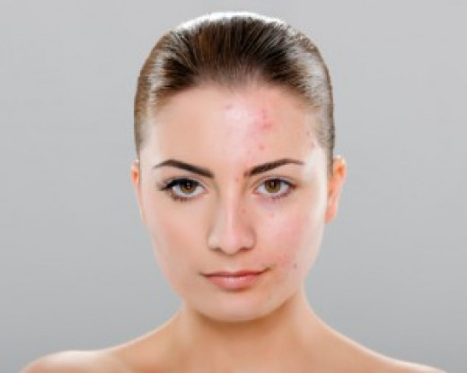 How To Fade Ice Pick Acne Scars