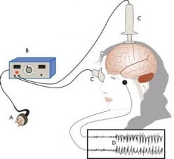 What do you know about ECT (Electric-convulsive Therapy)?