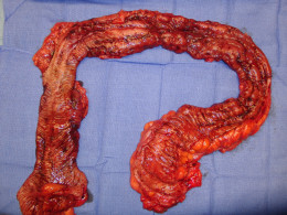 This is a photo of a colon that has been removed, due to ulcerative colitis. The entire colon is diseased, hence the dark red color, a healthy colon would be pink like the sides of your cheeks.