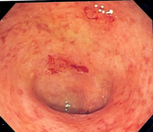 The pinkish color is portions of healthy colon, while the red ulceration is the ulcerative colitis.