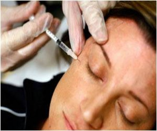 Therapeutic Botox® for blepharospasm requires injections very near the eye.