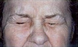 A person with BEB can't keep the eyes from squeezing without therapeutic Botox®.