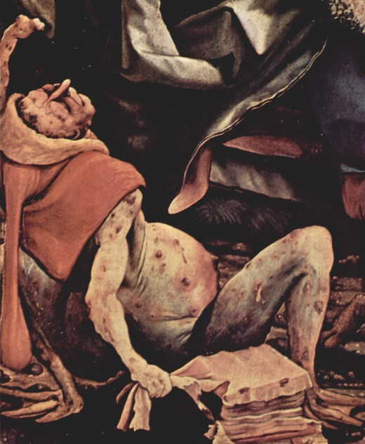Painting by Matthias Grünewald of a patient suffering from advanced ergotism in sixteen century.