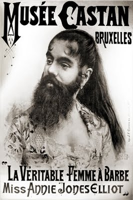 An old circus poster of the bearded woman - or a woman with hirsutism.