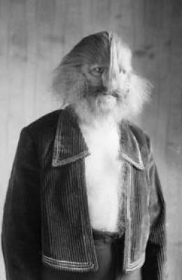 A man with hirsutism.