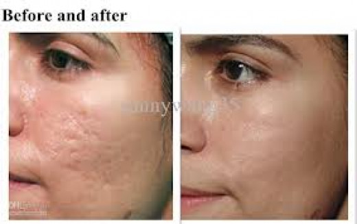Derma Rolling Treatments Hubpages