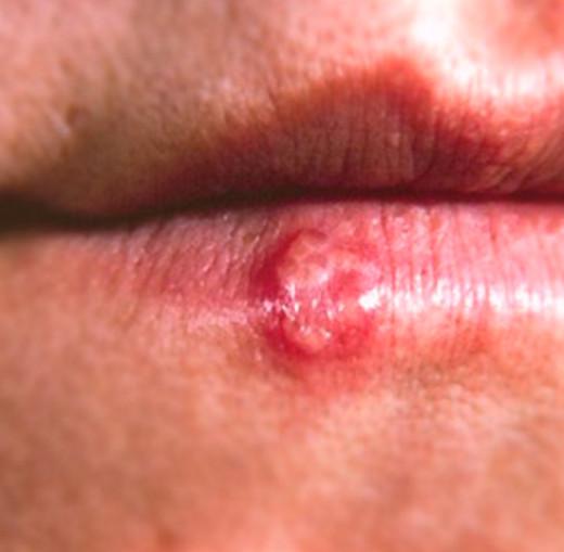 Cold Sore  U2013 Pictures  Symptoms  Causes  Treatment