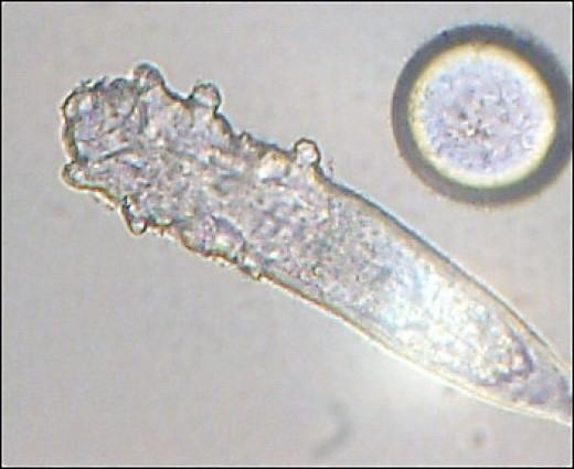 Demodex folliculorum, a mite which lives in human hair follicles