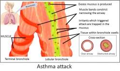 Do Children Outgrow Asthma and Show Declining Sensitivity?
