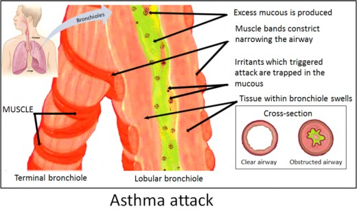 an analysis of asthma as a disorder that affects 20 of australians in their childhood Individuals performed their own cost–benefit analysis the economic effects of asthma20 our a qualitative study of action plans for asthma.