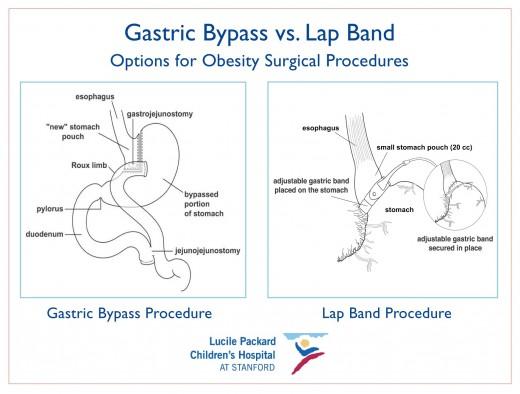 Gastric Bypass Surgery: Dangerous Weight Loss Technique The Health Coach