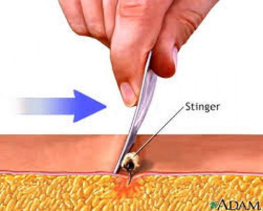 How a bee sting affects the skin layers.