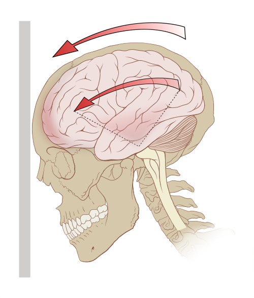 Graphic demonstration of a concussion's causes