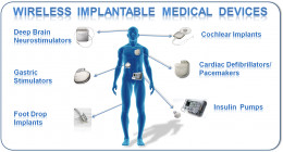 People are getting many implantable medical devices. This is a look at the possibilities.