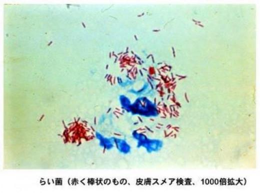 Source: Infections Disease Surveillance Center