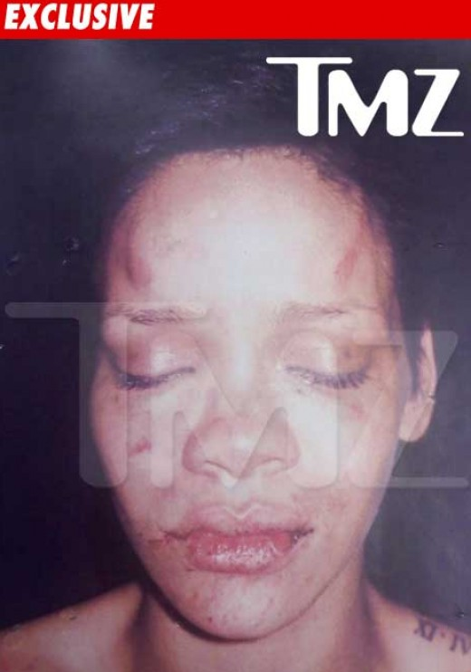 Rihanna after she was assaulted by Chris Brown