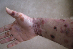 Bullous Pemphigoid – Pictures, Symptoms, Causes, Treatment
