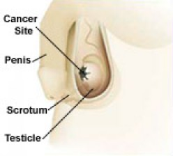 Testicular Cancer How To Test Yourself