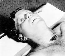 Kennedy autopsy photo