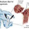 Osteoporosis- What you should know