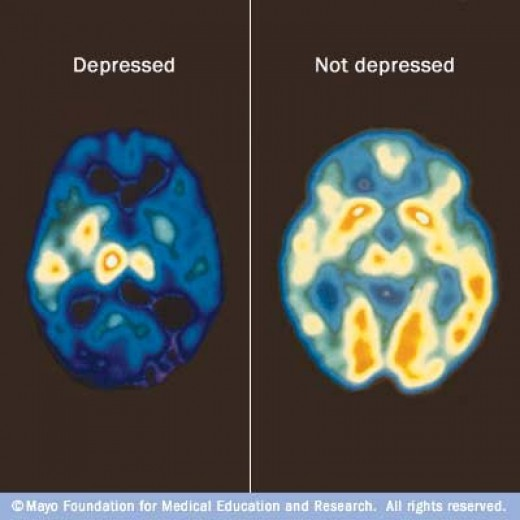 This picture shows that a depressed patient uses a limited part of the brain. The not depressed brain has a much higher capacity..