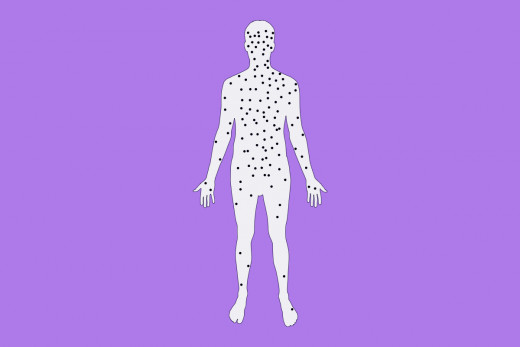Chicken pox and effected areas of the body
